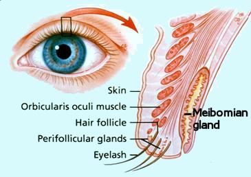 Meibomian gland disease (MGD) (Evaporative dry eyes) – Prevent